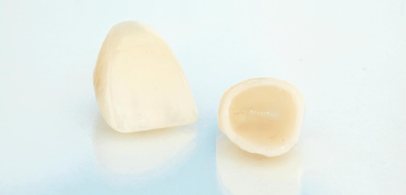 Ästhetische Zahnkrone in Aachen